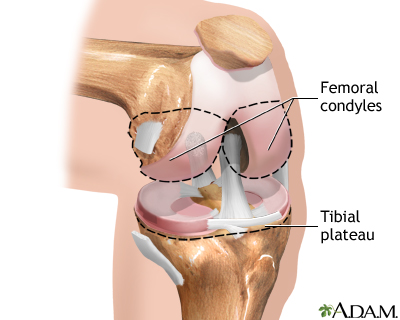 Knee joint replacement - Normal anatomy