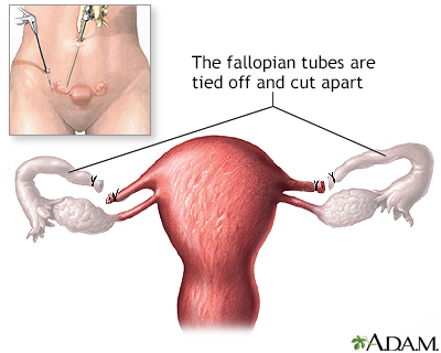 Tubal ligation - series - Baptist Hospital East