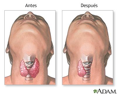Lobectomía Tiroidea